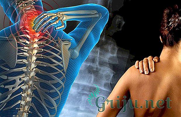 Шейно-черепной синдром симптомы проявления заболевания диагностика и лечение
