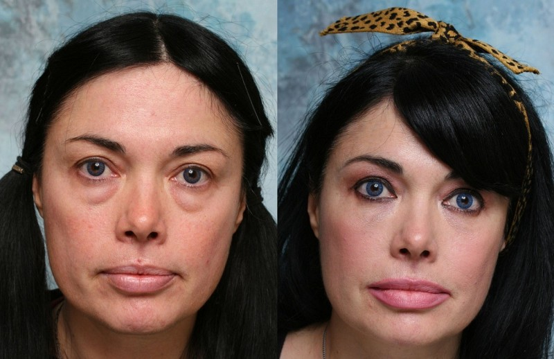 Пластика нижнего века до и после фото