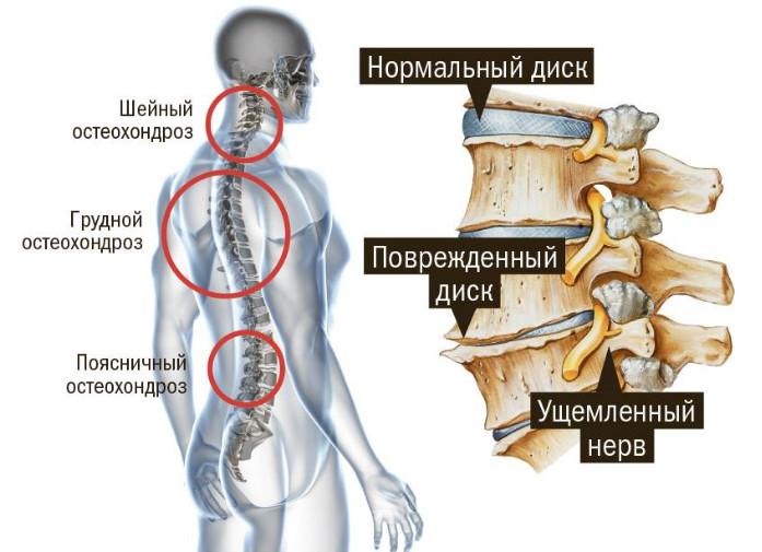 Остеохондроз шейного и грудного отдела позвоночника: симптомы ...
