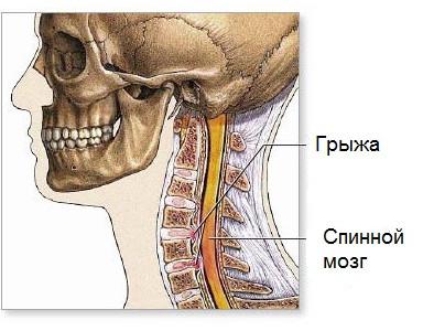 Как делать массаж при защемлении нерва в грудном отделе