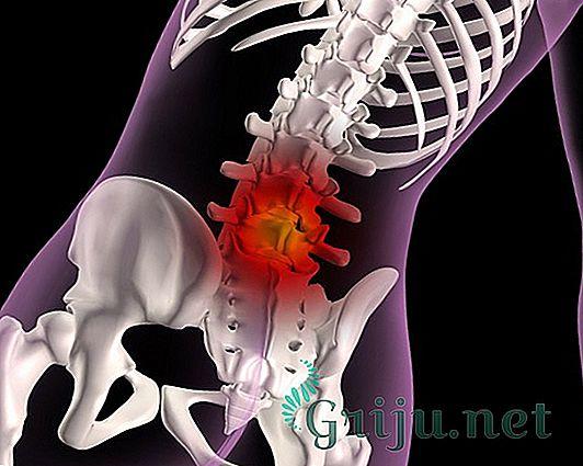 Симптомы грыжи шейного и грудного отдела позвоночника